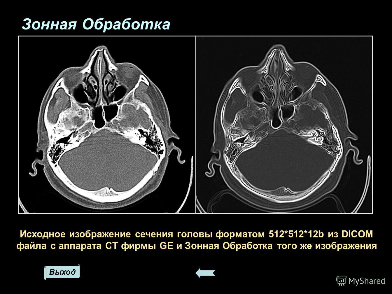 Выход Исходное изображение сечения головы форматом 512*512*12b из DICOM файла с аппарата CT фирмы GE и Зонная Обработка того же изображения Зонная Обработка