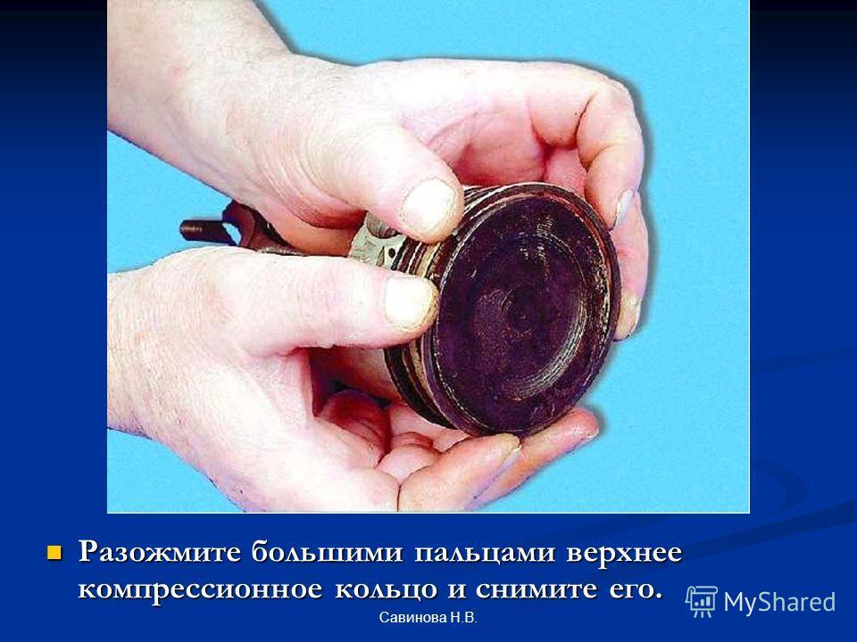 Разожмите большими пальцами верхнее компрессионное кольцо и снимите его. Савинова Н.В.