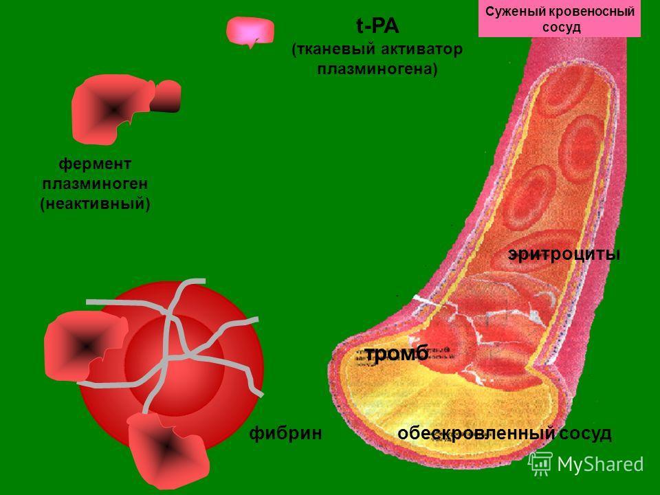 Суженый кровеносный сосуд эритроциты обескровленный сосуд тромб фермент плазминоген (неактивный) t-PA (тканевый активатор плазминогена) фибрин