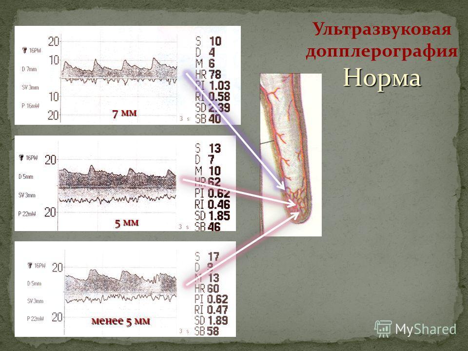 Ультразвуковая допплерографияНорма менее 5 мм 5 мм 7 мм