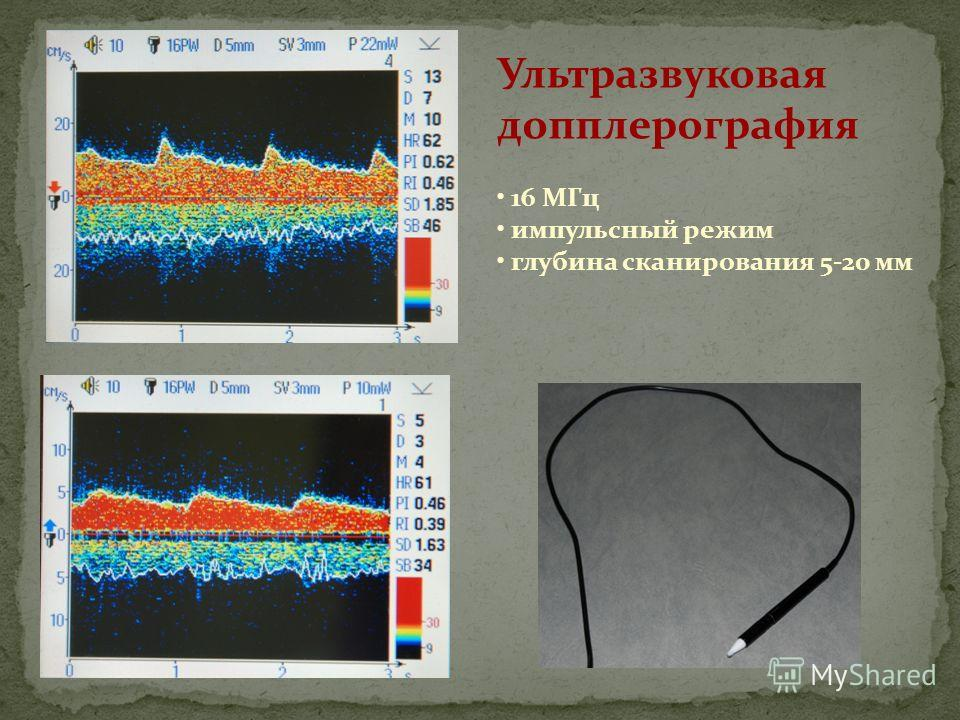 Ультразвуковая допплерография 16 МГц импульсный режим глубина сканирования 5-20 мм