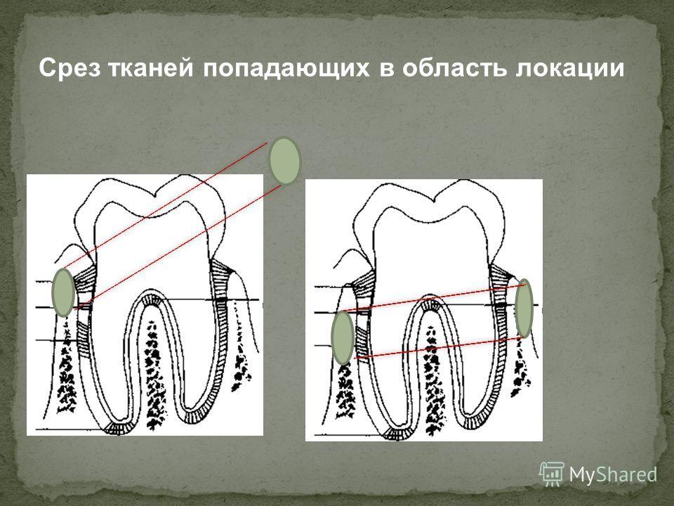 Срез тканей попадающих в область локации
