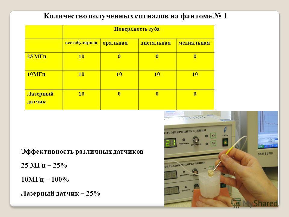 Поверхность зуба вестибулярная оральнаядистальнаямедиальная 25 МГц10 000 10МГц 10 Лазерный датчик 10000 Количество полученных сигналов на фантоме 1 Эффективность различных датчиков 25 МГц – 25% 10МГц – 100% Лазерный датчик – 25%
