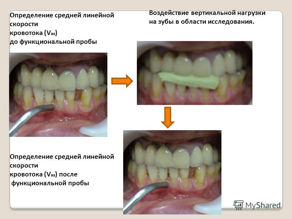 Определение средней линейной скорости кровотока (V as ) до функциональной пробы Определение средней линейной скорости кровотока (V as ) после функциональной пробы Воздействие вертикальной нагрузки на зубы в области исследования.