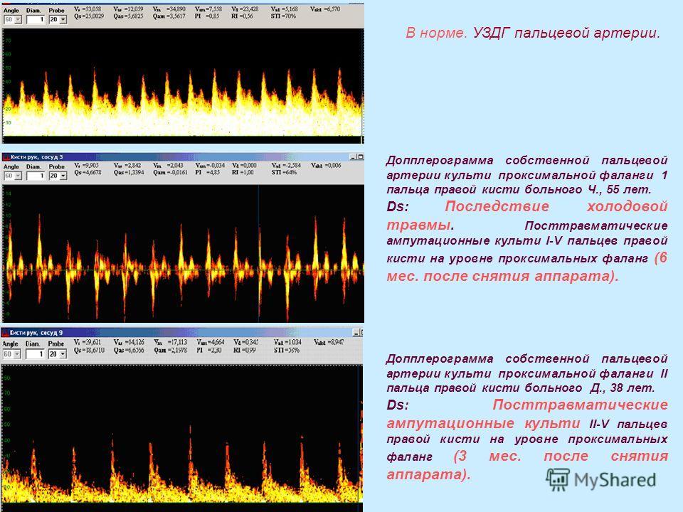 Допплерограмма собственной пальцевой артерии культи проксимальной фаланги 1 пальца правой кисти больного Ч., 55 лет. Ds: Последствие холодовой травмы. Посттравматические ампутационные культи I-V пальцев правой кисти на уровне проксимальных фаланг (6