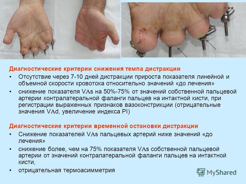 Диагностические критерии снижения темпа дистракции Отсутствие через 7-10 дней дистракции прироста показателя линейной и объемной скорости кровотока относительно значений «до лечения» снижение показателя V s на 50%-75% от значений собственной пальцево