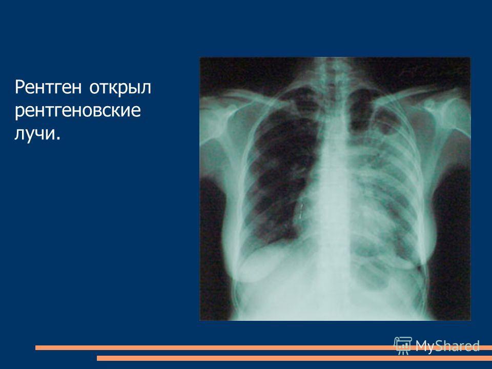Рентген открыл рентгеновские лучи.