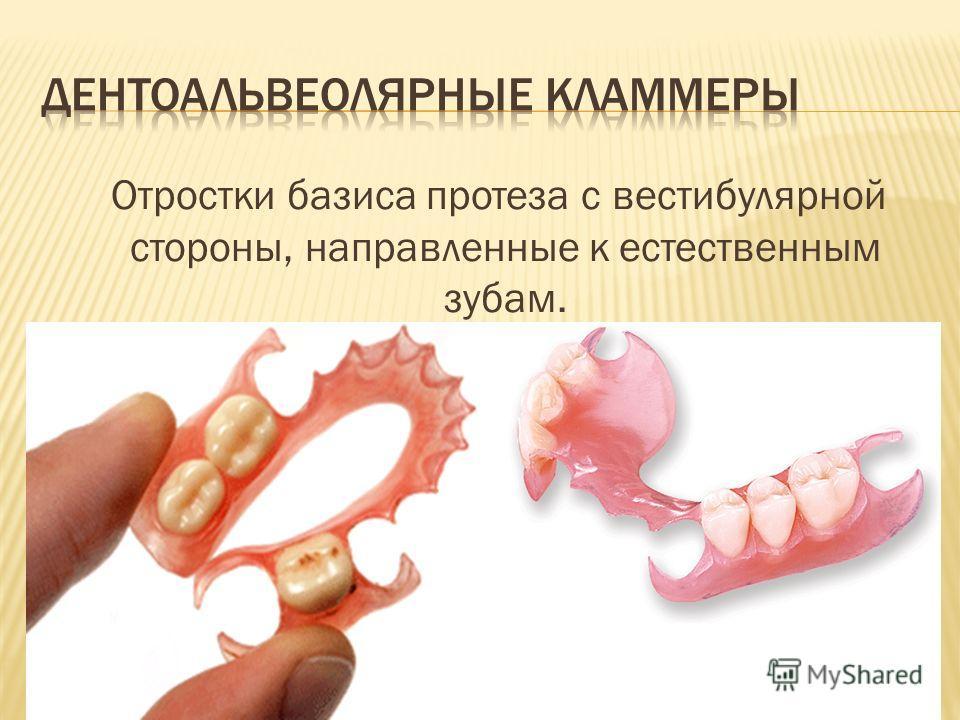Отростки базиса протеза с вестибулярной стороны, направленные к естественным зубам.