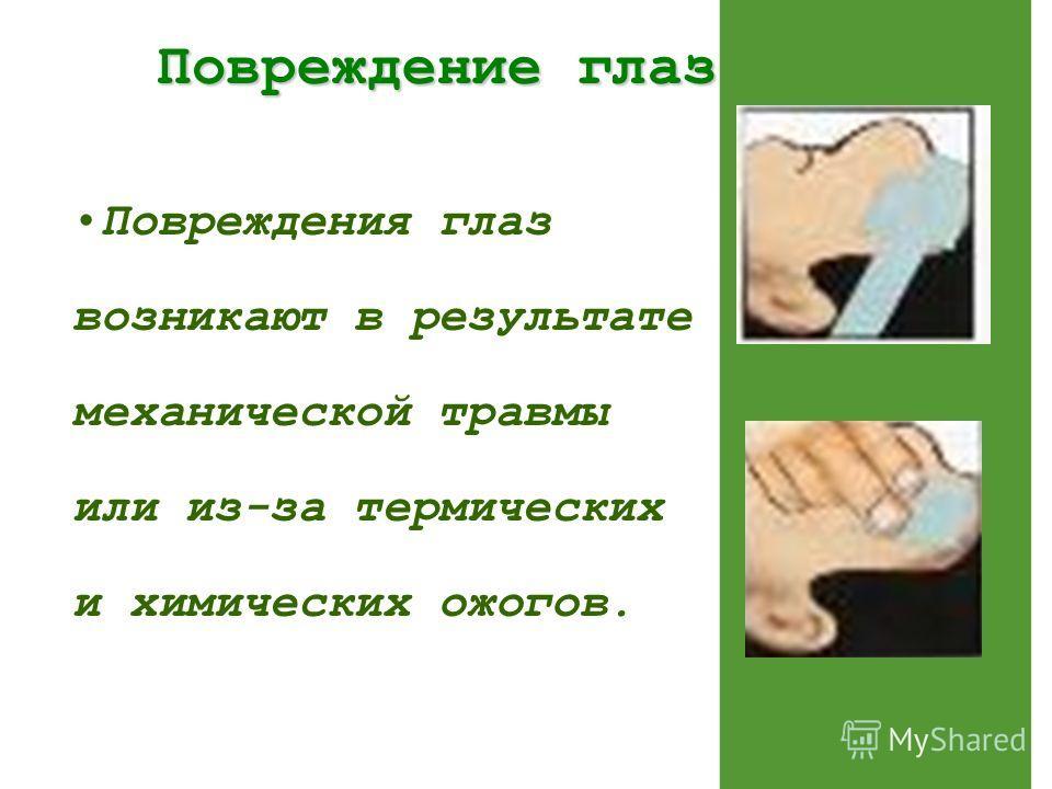 Повреждение глаз Повреждение глаз Повреждения глаз возникают в результате механической травмы или из-за термических и химических ожогов.