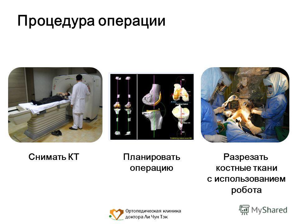 Ортопедическая клиника доктора Ли Чун Тэк Процедура операции Снимать КТ Разрезать костные ткани с использованием робота Планировать операцию