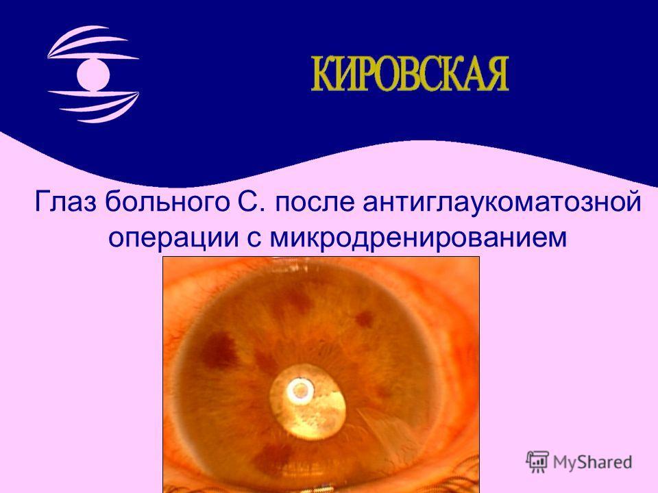 Глаз больного С. после антиглаукоматозной операции с микродренированием