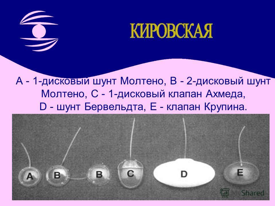 A - 1-дисковый шунт Молтено, B - 2-дисковый шунт Молтено, C - 1-дисковый клапан Ахмеда, D - шунт Бервельдта, E - клапан Крупина.
