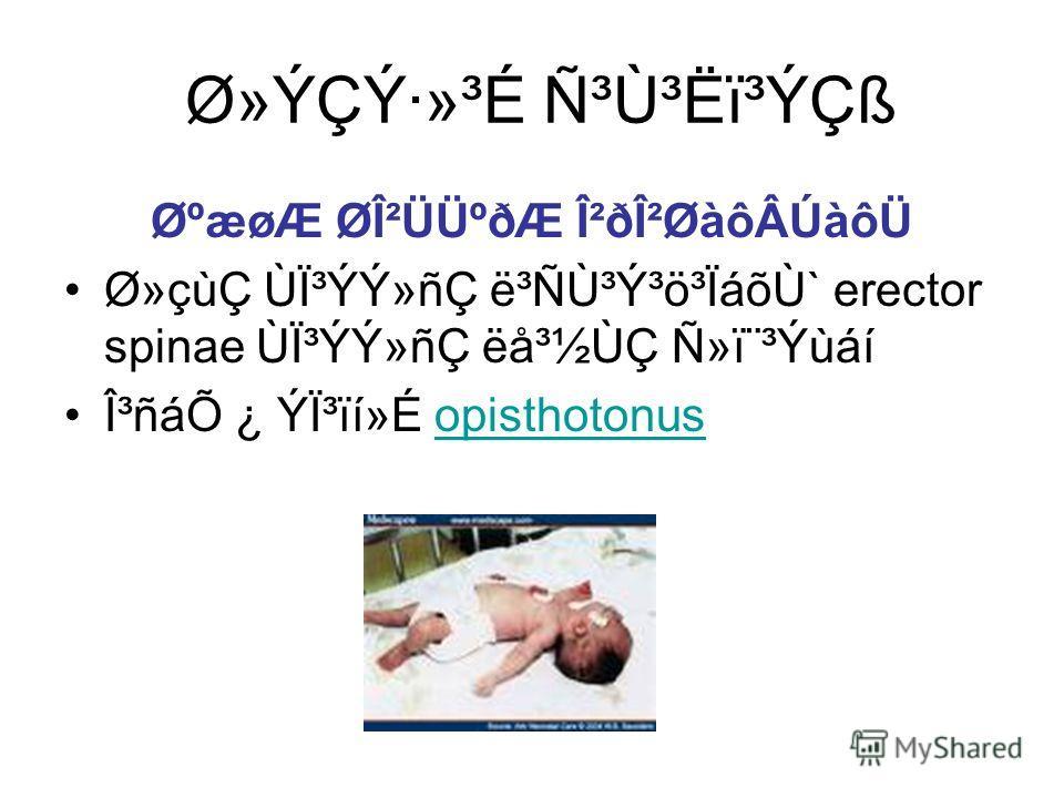 Ø»ÝÇÝ·»³É ѳٳËï³ÝÇß ØºæøÆ ØβÜܺðÆ Î²ðβØàôÂÚàôÜ Ø»çùÇ ÙϳÝÝ»ñÇ ë³Ñٳݳö³ÏáõÙ` erector spinae ÙϳÝÝ»ñÇ ëå³½ÙÇ Ñ»ï¨³Ýùáí γñáÕ ¿ Ýϳïí»É opisthotonusopisthotonus