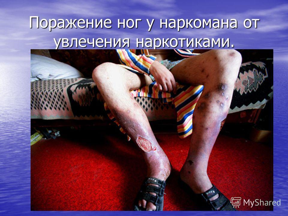 Поражение ног у наркомана от увлечения наркотиками.