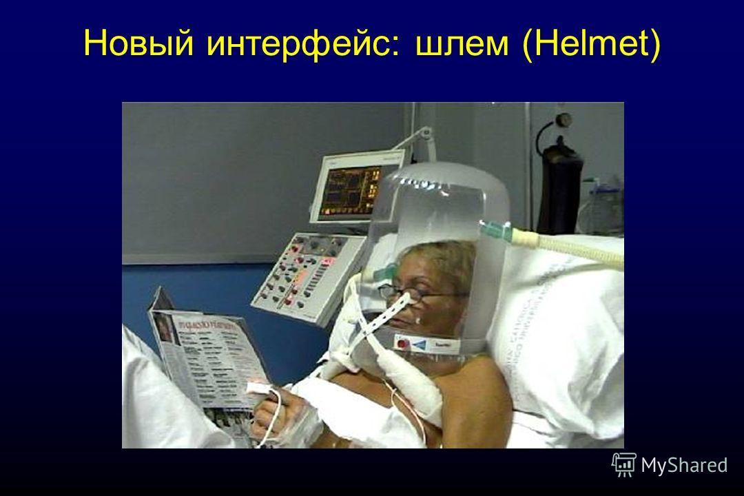 Новый интерфейс: шлем (Helmet)