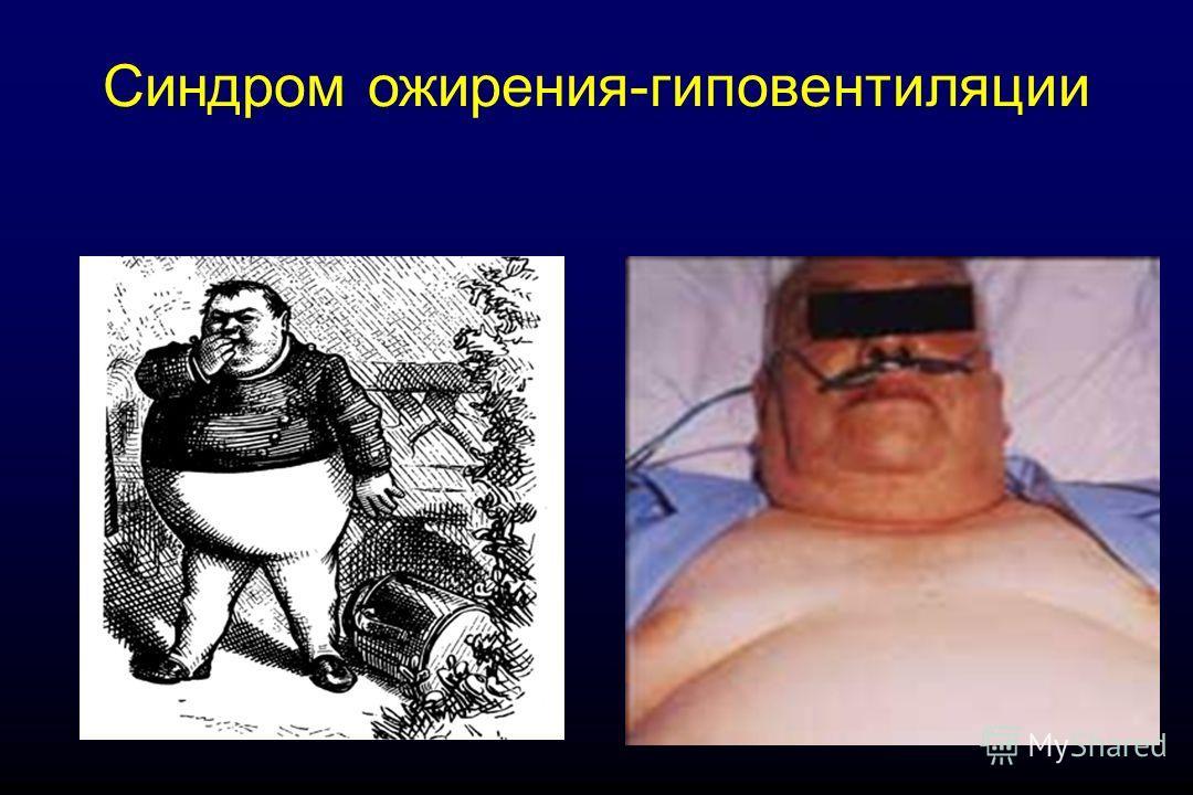 Синдром ожирения-гиповентиляции
