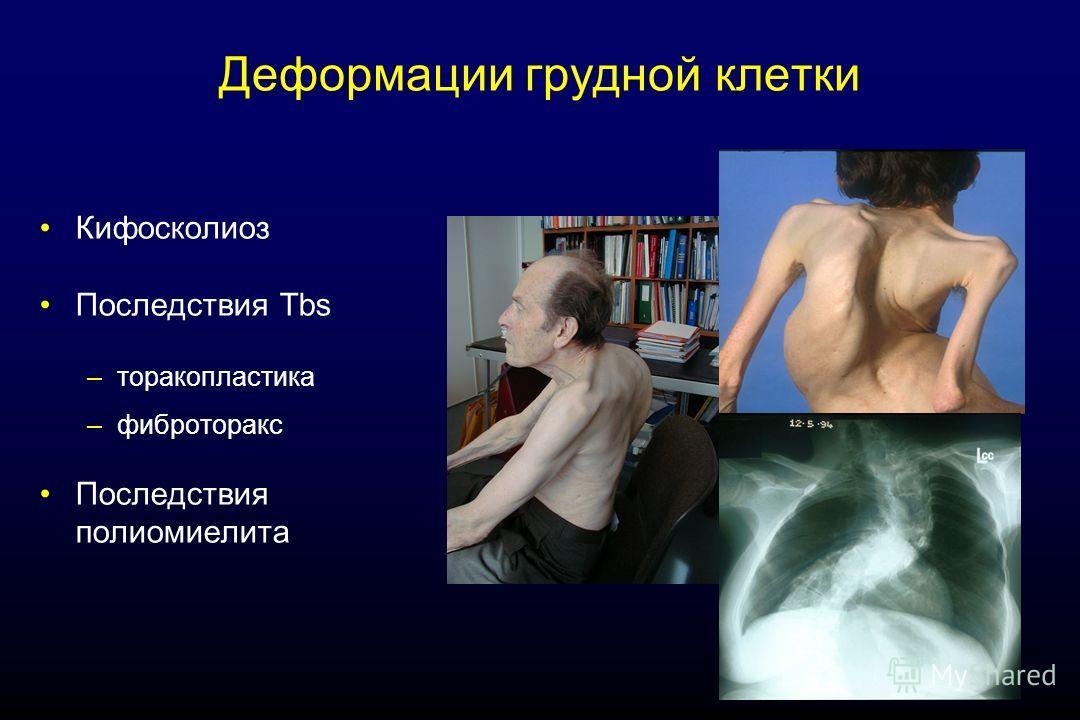 Деформации грудной клетки Кифосколиоз Последствия Tbs –торакопластика –фиброторакс Последствия полиомиелита