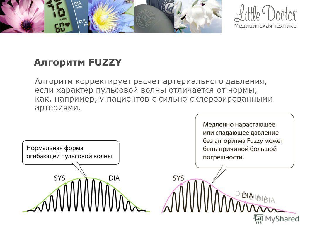 Алгоритм FUZZY Алгоритм корректирует расчет артериального давления, если характер пульсовой волны отличается от нормы, как, например, у пациентов с сильно склерозированными артериями. Медицинская техника