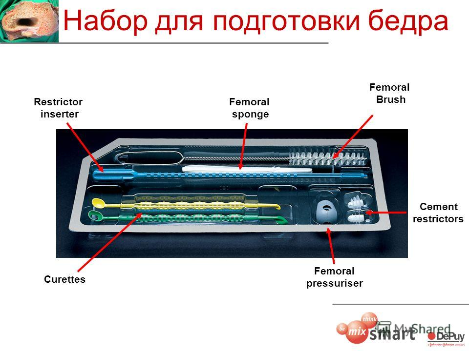 Набор для подготовки бедра Cement restrictors Femoral pressuriser Femoral sponge Curettes Restrictor inserter Femoral Brush