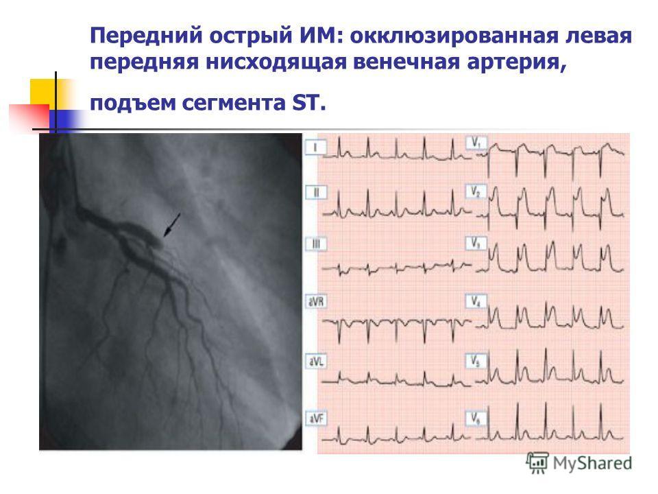 Передний острый ИМ: окклюзированная левая передняя нисходящая венечная артерия, подъем сегмента ST.