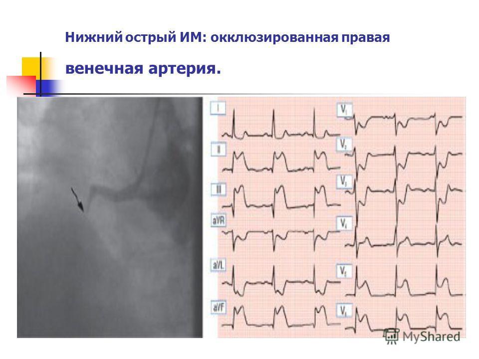 Нижний острый ИМ: окклюзированная правая венечная артерия.
