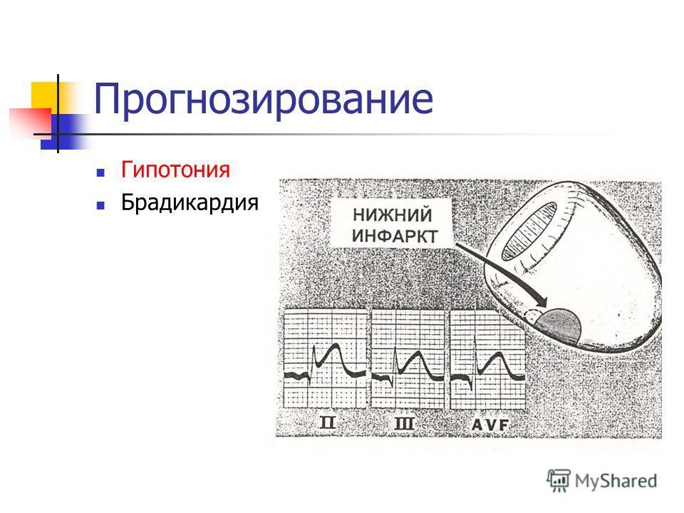 Прогнозирование Гипотония Брадикардия