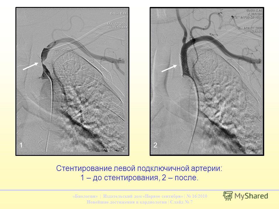 «Биология» | Издательский дом «Первое сентября» | 16/2010 Новейшие достижения в кардиологии | Слайд 7 Стентирование левой подключичной артерии: 1 – до стентирования, 2 – после. 12