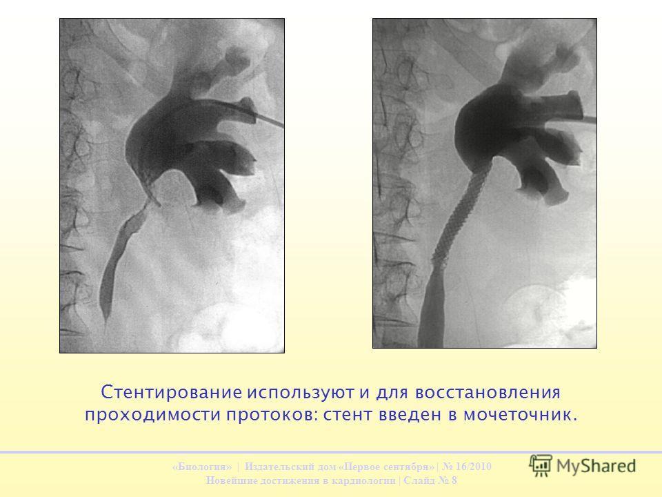 «Биология» | Издательский дом «Первое сентября» | 16/2010 Новейшие достижения в кардиологии | Слайд 8 Стентирование используют и для восстановления проходимости протоков: стент введен в мочеточник.