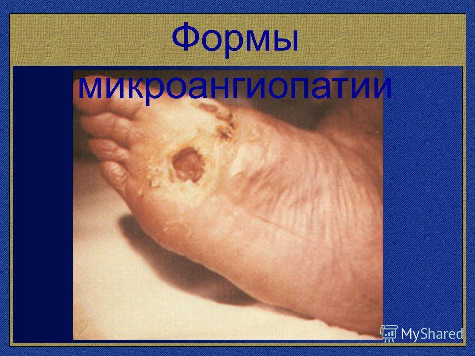 Формы микроангиопатии