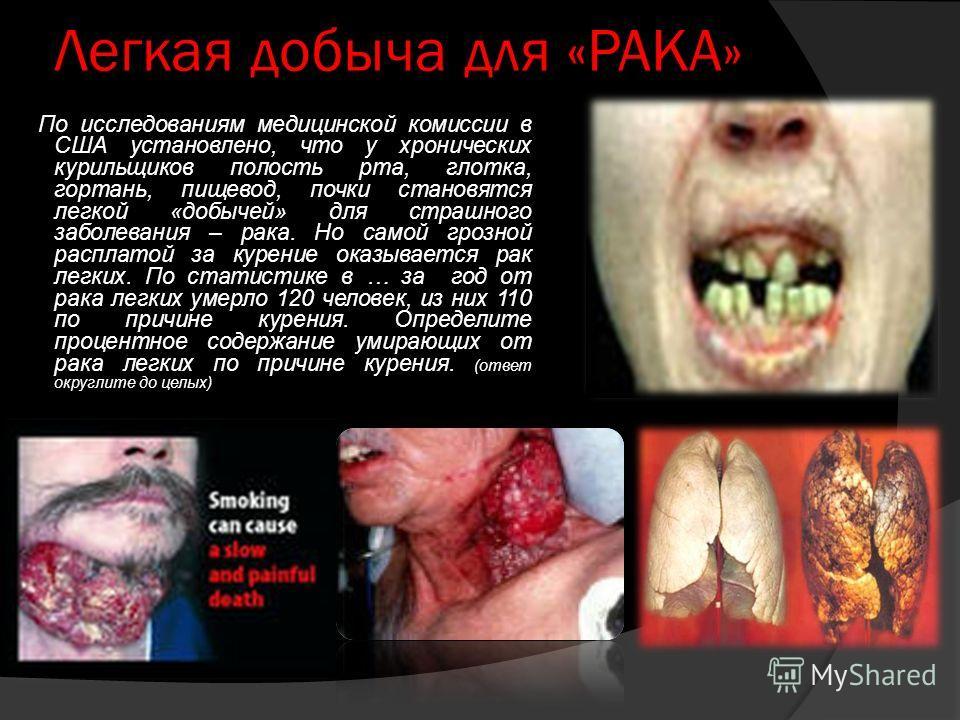 Легкая добыча для «РАКА» По исследованиям медицинской комиссии в США установлено, что у хронических курильщиков полость рта, глотка, гортань, пищевод, почки становятся легкой «добычей» для страшного заболевания – рака. Но самой грозной расплатой за к