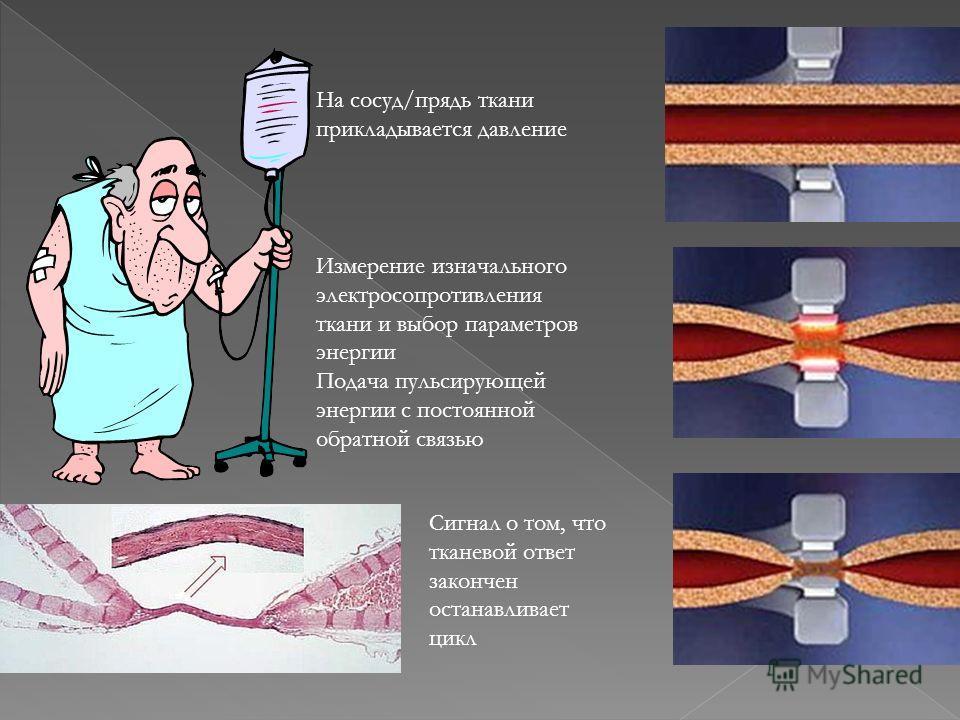 На сосуд/прядь ткани прикладывается давление Измерение изначального электросопротивления ткани и выбор параметров энергии Подача пульсирующей энергии с постоянной обратной связью Сигнал о том, что тканевой ответ закончен останавливает цикл