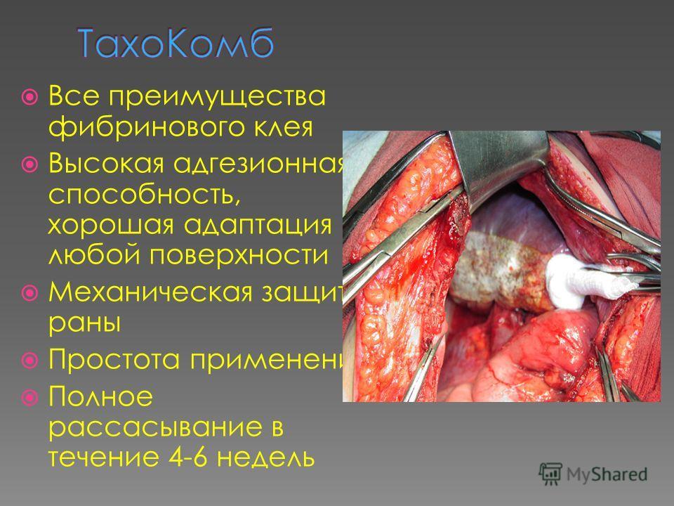 Все преимущества фибринового клея Высокая адгезионная способность, хорошая адаптация к любой поверхности Механическая защита раны Простота применения Полное рассасывание в течение 4-6 недель