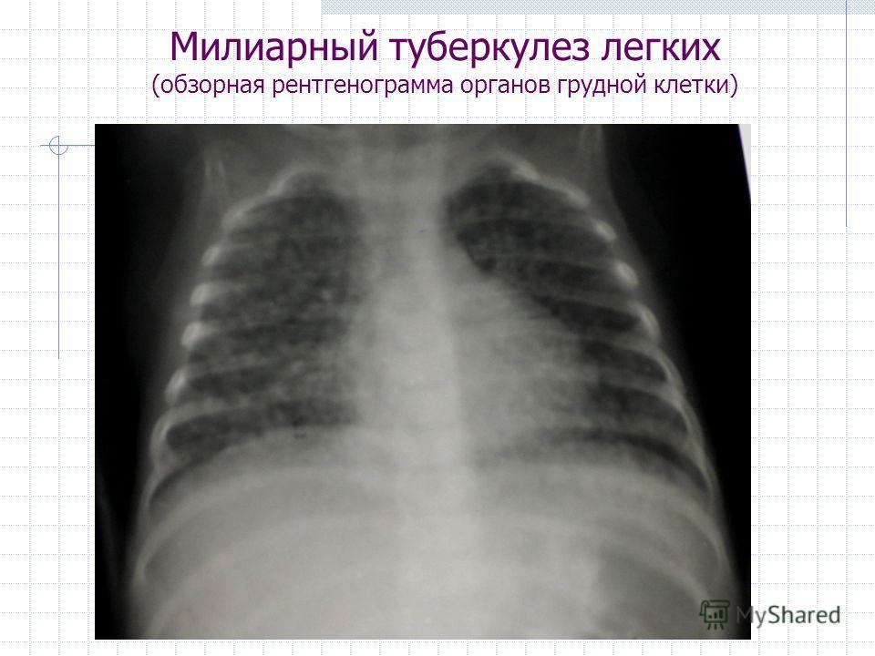 Милиарный туберкулез легких (обзорная рентгенограмма органов грудной клетки)