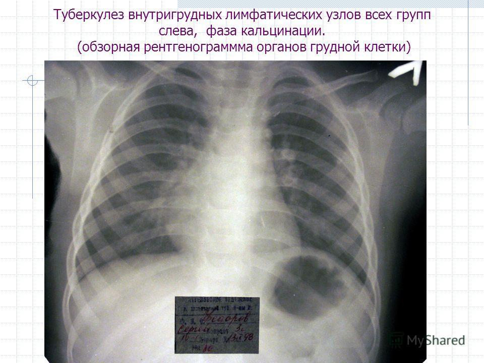 Туберкулез внутригрудных лимфатических узлов всех групп слева, фаза кальцинации. (обзорная рентгенограммма органов грудной клетки)