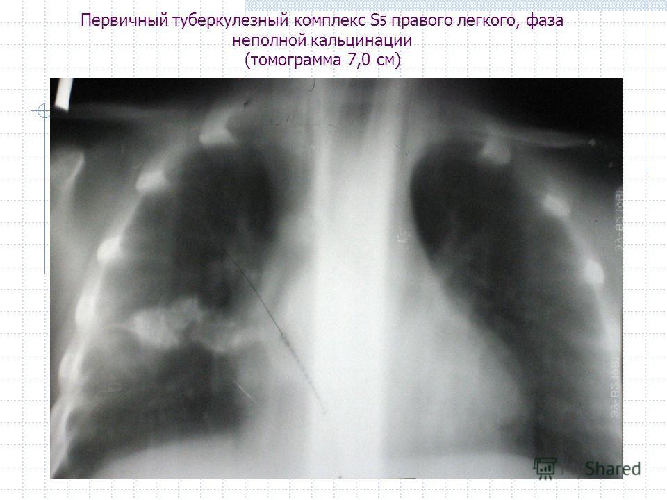 Первичный туберкулезный комплекс S 5 правого легкого, фаза неполной кальцинации (томограмма 7,0 см)