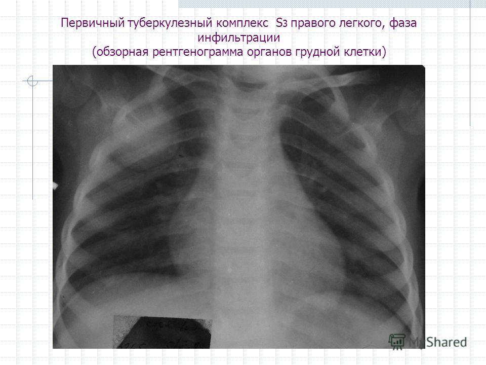 Первичный туберкулезный комплекс S 3 правого легкого, фаза инфильтрации (обзорная рентгенограмма органов грудной клетки)