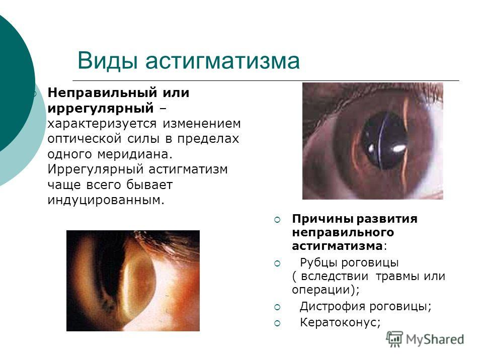 2 зрение это близорукость или дальнозоркость