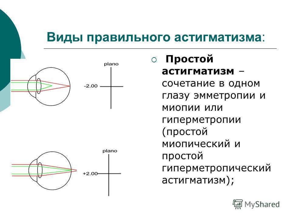 Лазерная коррекция зрения методом фемтоласик