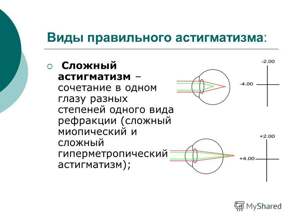 Виды правильного астигматизма: Сложный астигматизм – сочетание в одном глазу разных степеней одного вида рефракции (сложный миопический и сложный гиперметропический астигматизм);