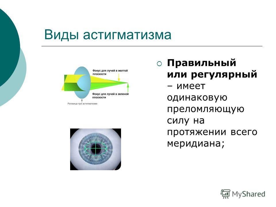 Виды астигматизма Правильный или регулярный – имеет одинаковую преломляющую силу на протяжении всего меридиана;