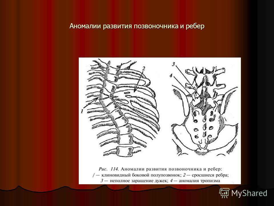 Аномалии развития позвоночника и ребер