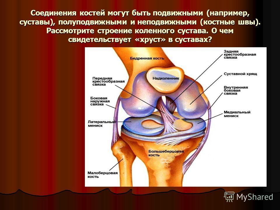 Соединения костей могут быть подвижными (например, суставы), полуподвижными и неподвижными (костные швы). Рассмотрите строение коленного сустава. О чем свидетельствует «хруст» в суставах?