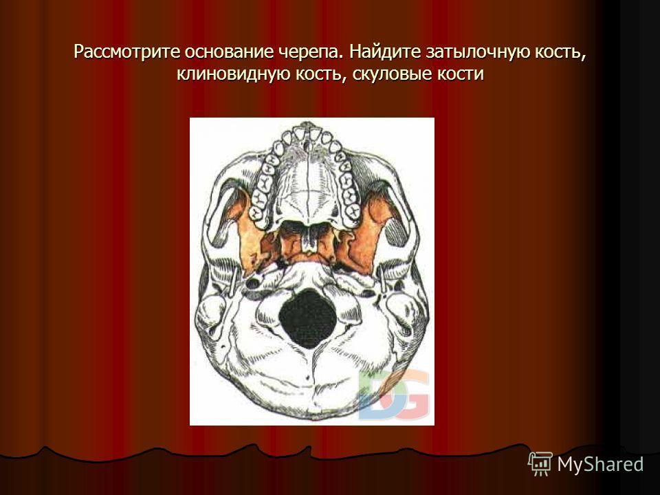 Рассмотрите основание черепа. Найдите затылочную кость, клиновидную кость, скуловые кости