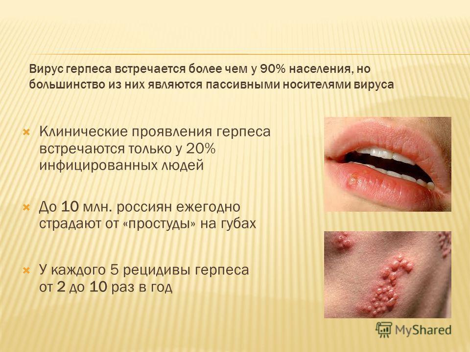 Вирус герпеса встречается более чем у 90% населения, но большинство из них являются пассивными носителями вируса Клинические проявления герпеса встречаются только у 20% инфицированных людей До 10 млн. россиян ежегодно страдают от «простуды» на губах