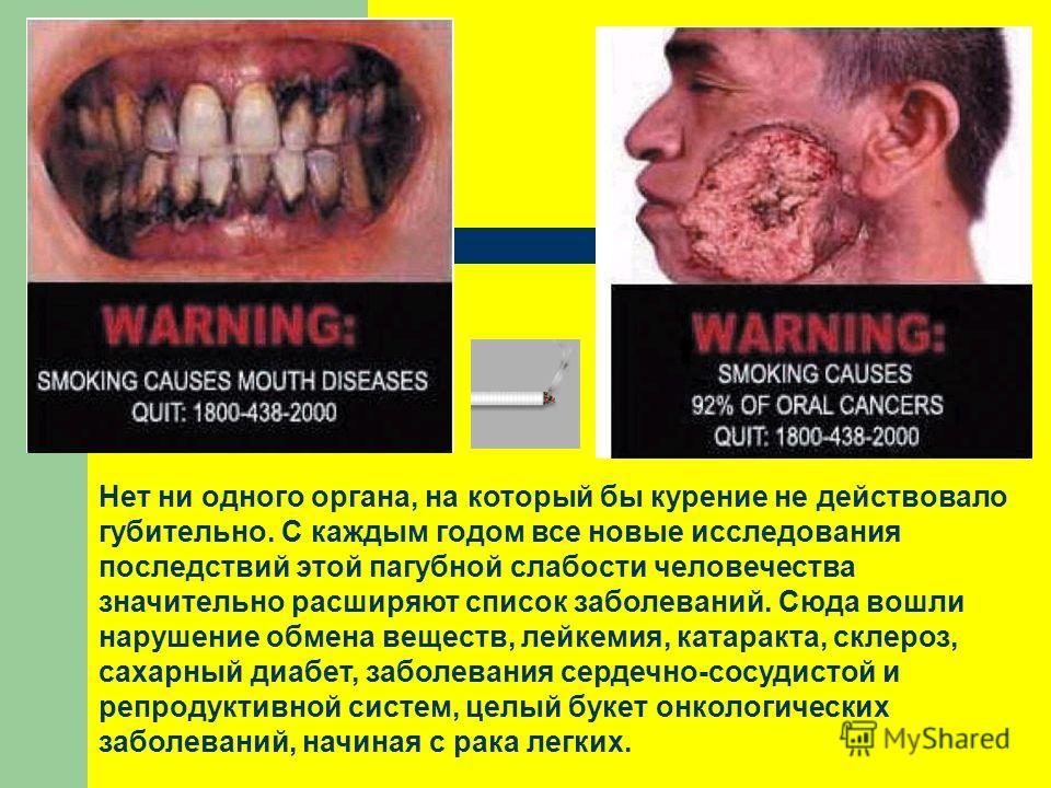 Нет ни одного органа, на который бы курение не действовало губительно. С каждым годом все новые исследования последствий этой пагубной слабости человечества значительно расширяют список заболеваний. Сюда вошли нарушение обмена веществ, лейкемия, ката