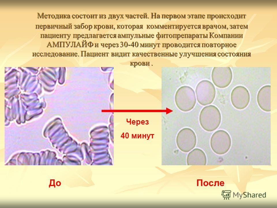 Методика состоит из двух частей. На первом этапе происходит первичный забор крови, которая комментируется врачом, затем пациенту предлагается ампульные фитопрепараты Компании АМПУЛАЙФ и через 30-40 минут проводится повторное исследование. Пациент вид
