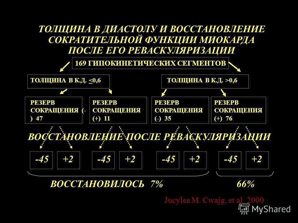 169 ГИПОКИНЕТИЧЕСКИХ СЕГМЕНТОВ ТОЛЩИНА В К.Д. 0,6 РЕЗЕРВ СОКРАЩЕНИЯ (- ) 47 ТОЛЩИНА В ДИАСТОЛУ И ВОССТАНОВЛЕНИЕ СОКРАТИТЕЛЬНОЙ ФУНКЦИИ МИОКАРДА ПОСЛЕ ЕГО РЕВАСКУЛЯРИЗАЦИИ РЕЗЕРВ СОКРАЩЕНИЯ (+) 11 РЕЗЕРВ СОКРАЩЕНИЯ (-) 35 РЕЗЕРВ СОКРАЩЕНИЯ (+) 76 ВОСС