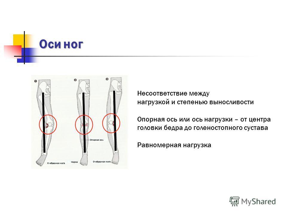 Оси ног Несоответствие между нагрузкой и степенью выносливости Опорная ось или ось нагрузки – от центра головки бедра до голеностопного сустава Равномерная нагрузка X-образная нога Норма О-образная нога Опорная ось