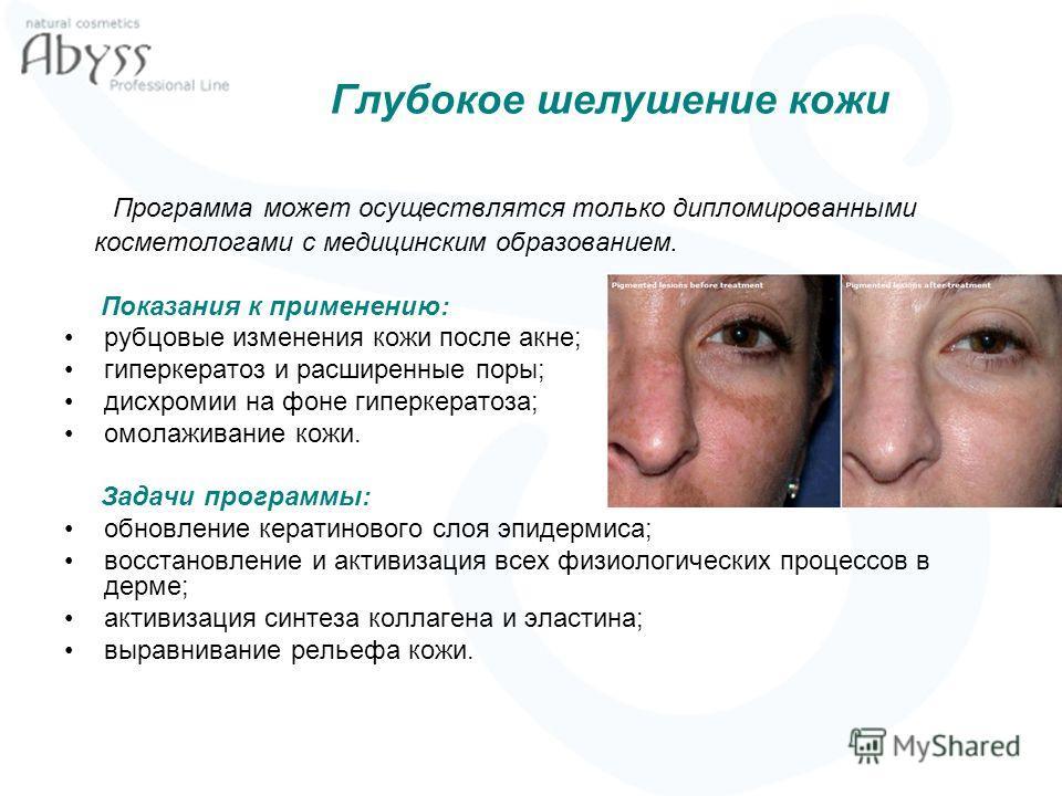 Глубокое шелушение кожи Программа может осуществлятся только дипломированными косметологами с медицинским образованием. Показания к применению: рубцовые изменения кожи после акне; гиперкератоз и расширенные поры; дисхромии на фоне гиперкератоза; омол