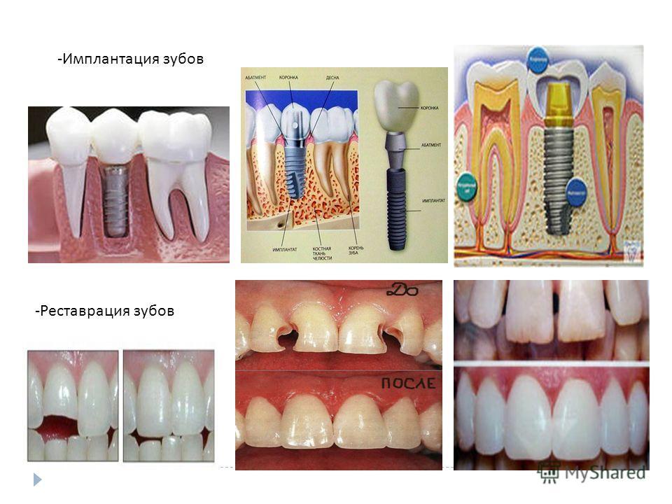 - Имплантация зубов - Реставрация зубов